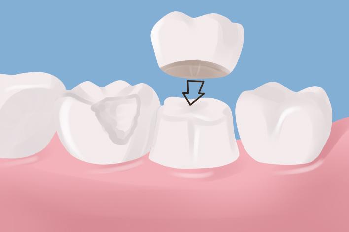 dental-crown-10018
