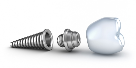 dental - implants